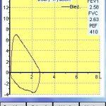 spirometr microlab microloop mk8 - spirometria natężona